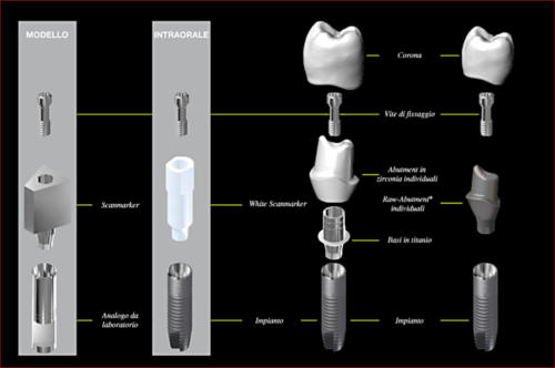 Abutments individuali
